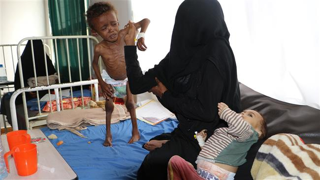 A Yemeni child, who suffers from malnutrition, stands next to his mother at a hospital in the city of Sa'ada, Yemen, on April 4, 2017. (Photo by Reuters)